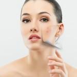 Hilfe gegen Akne