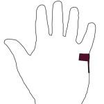 Reflexzonenmassage bei Tennisarm