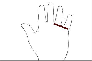 finger plötzlich taub