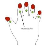 hilft gegen rheumatischer Anfall